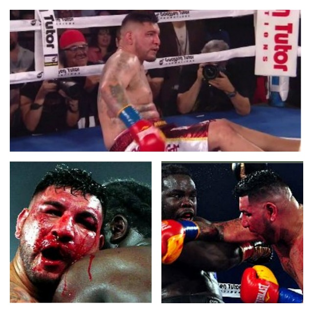 Even after Chris Arreola was knocked off his feet and had his nose broken, he fought to the bitter end against Bermane B. Ware Stiverne.