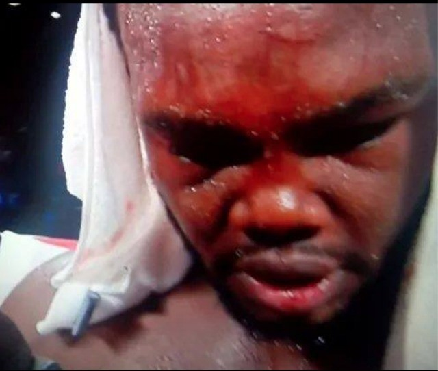 From the look on Bermane Stiverne's face, it was evident who won Saturday's title fight at the MGM Grand Hotel & Casino in Las Vegas, Nevada.