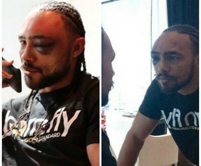 The following day we see Keith Thurman looking in a mirror at the closed left eye.